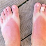 feet sunburn